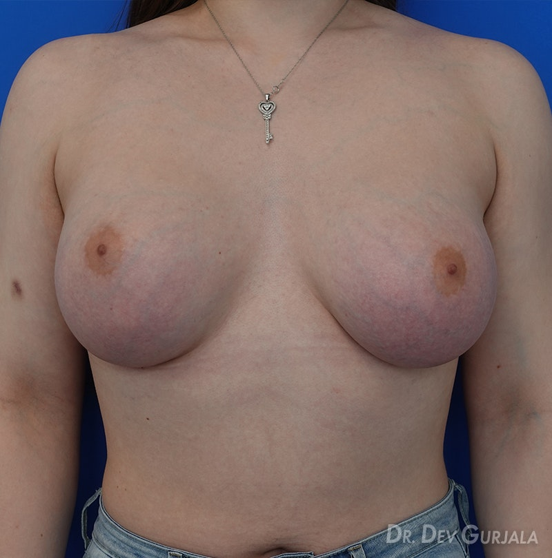 Mtf Breast Augmentation Gurjala Before and After | Align Surgical Associates, Inc.