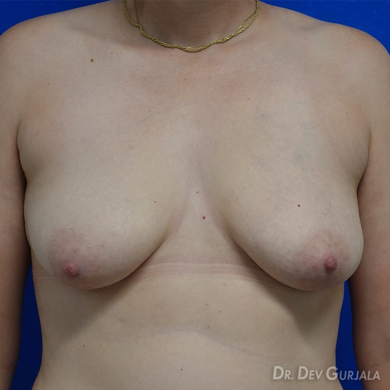 Top Surgery Gurjala Before and After | Align Surgical Associates, Inc.